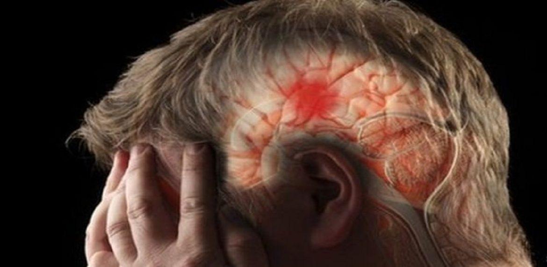 سکته مغزی (CVA)
