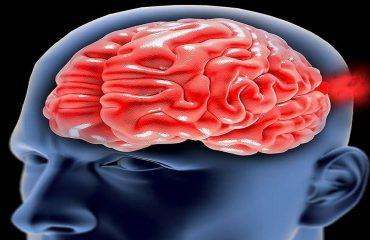 پارگی و خونریزی عروق مغزی