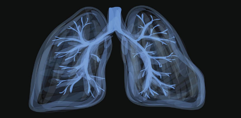 علل بروز مشکلات تنفسی