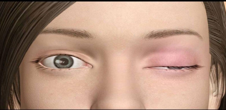 بیماری میاستنیگراویس