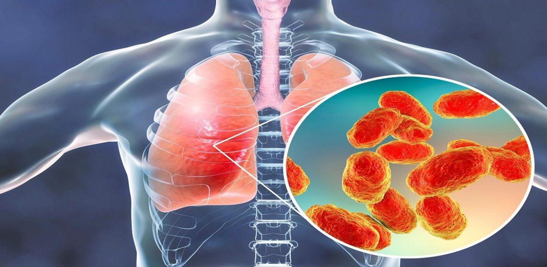 عوامل خطرآفرین در بیماری پنومونی