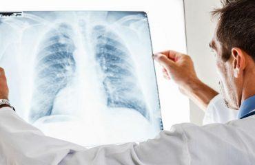 فرآیند تشخیص بیماری آمبولی ریه با استفاده از روش های مختلف