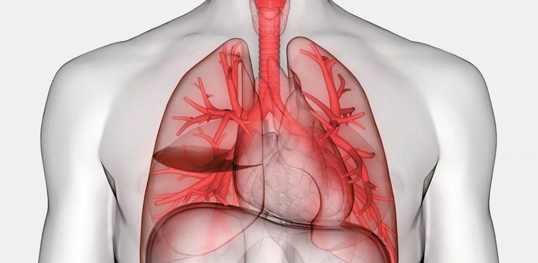 نشانه های کلینیکی و بالینی پلورال افیوژن