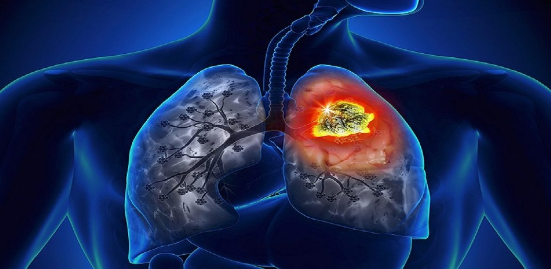 چه عواملی در بروز سرطان سینه موثر هستند ؟