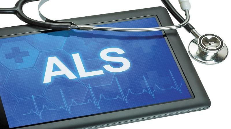 چگونگی بروز بیماری ALS
