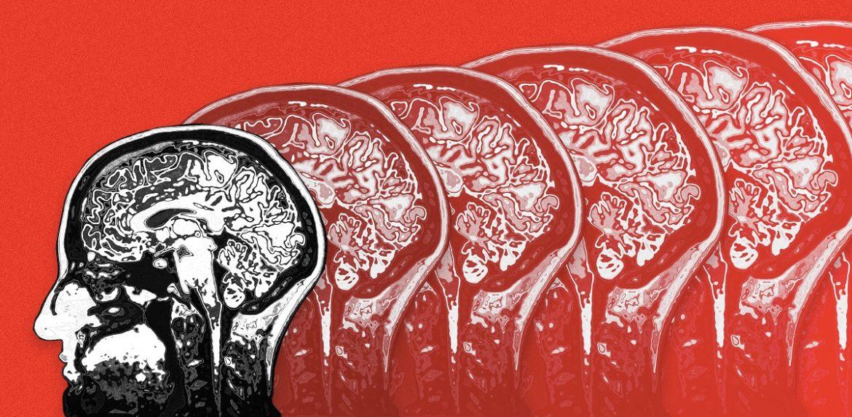 فوق تخصص ICU التهاب بافت مغز چه نشانه هایی در پی دارد ؟