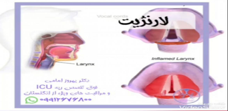 لارنژیت (التهاب حنجره)