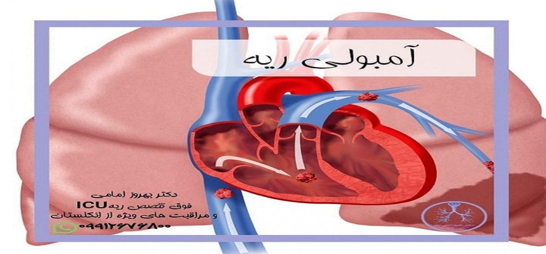 آمبولی ریه چه زمانی رخ می دهد؟