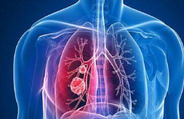 انواع سرطان ریه