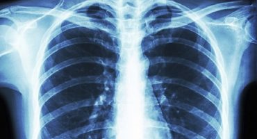 تشخیص بیماری انسداد ریوی مزمن (COPD)