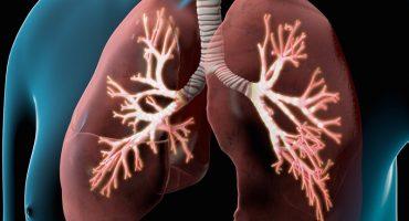 درمان بیماری انسداد ریوی مزمن