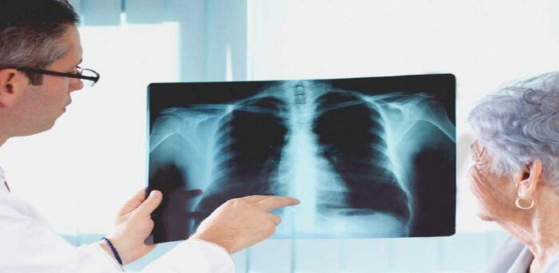 عفونت های تنفسی در مبتلایان به دیابت