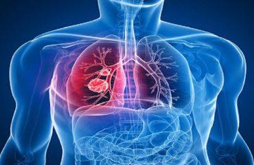 عفونت های تنفسی