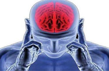 میگرن خطر سکته مغزی