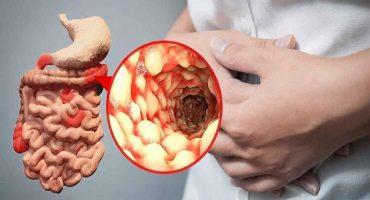 علائم گوارشی بیماری کووید ۱۹