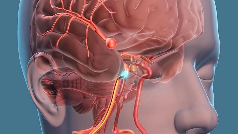 عوامل خطر آنوریسم مغزی